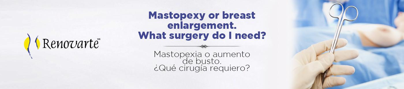 Mastopexia o aumento de pecho ¿Qué cirugía requiero?